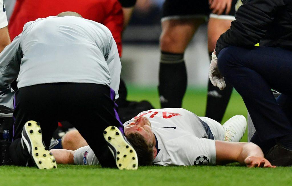 Травма на футболе.