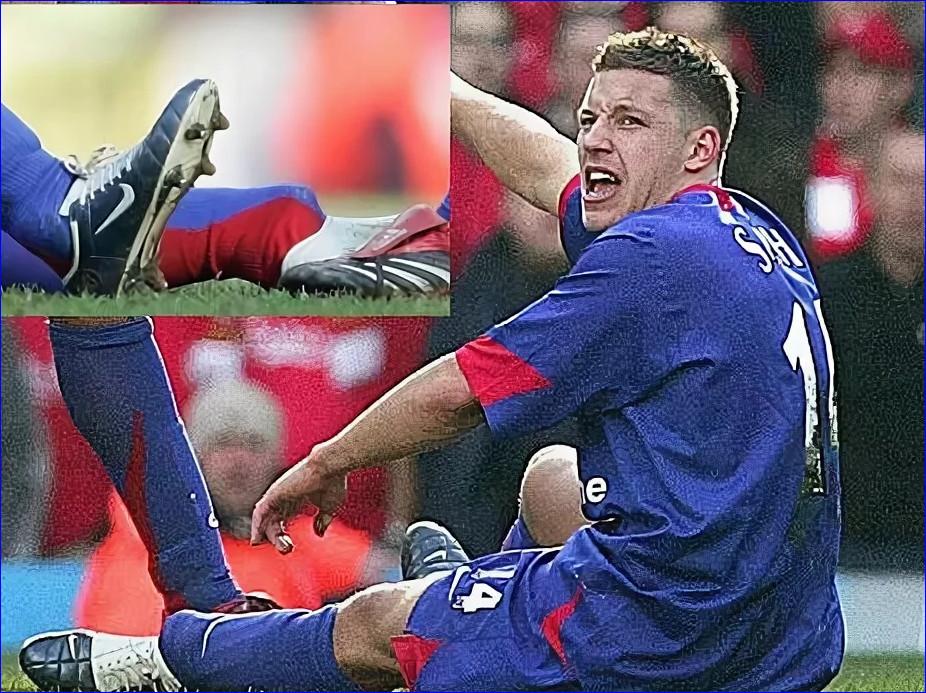Самые ужасные травмы в футболе