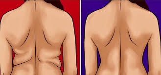 """""""Диагональ"""" - простое упражнение от жировых валиков на спине"""